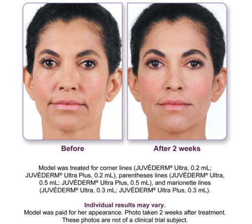 Juvederm Ultra Plus Before After 2