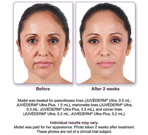 Juvederm Ultra Plus Before After 1