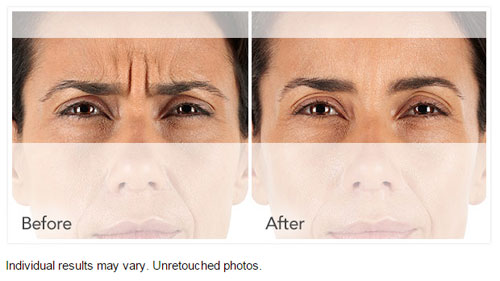 XEOMIN® Before and Afte