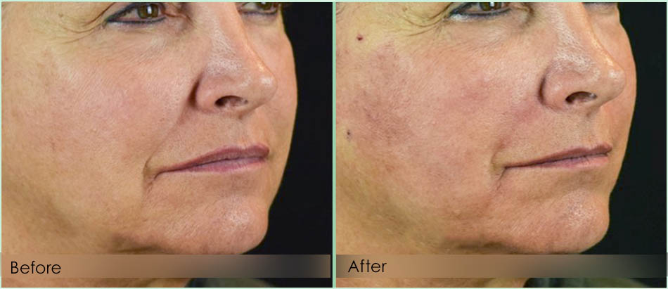 Before-After-midface