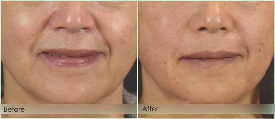 Before-After-midface2