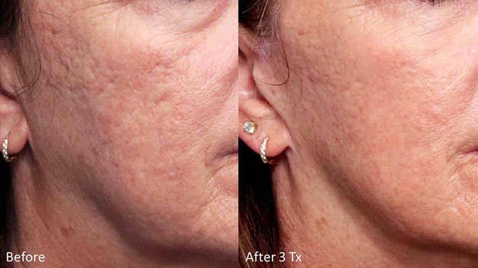 acne-scar-removal-los-gatos-1