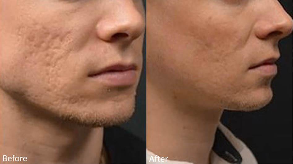 acne-scar-removal-los-gatos-2
