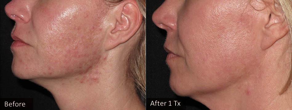 acne-scar-removal-los-gatos-5