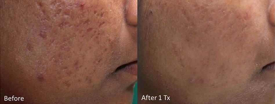 acne-scar-removal-los-gatos-6