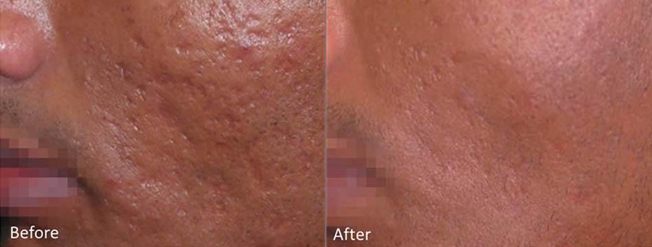 acne-scar-removal-los-gatos-7