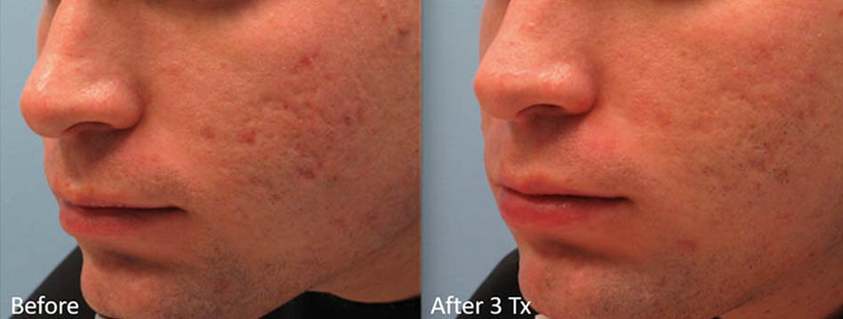 acne-scar-removal-los-gatos-8