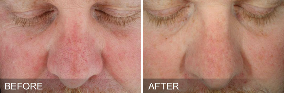 before-after-SunDamage
