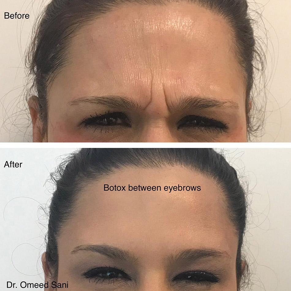 botox-11-lines-between-eyebrows-san-jose-los-gatos