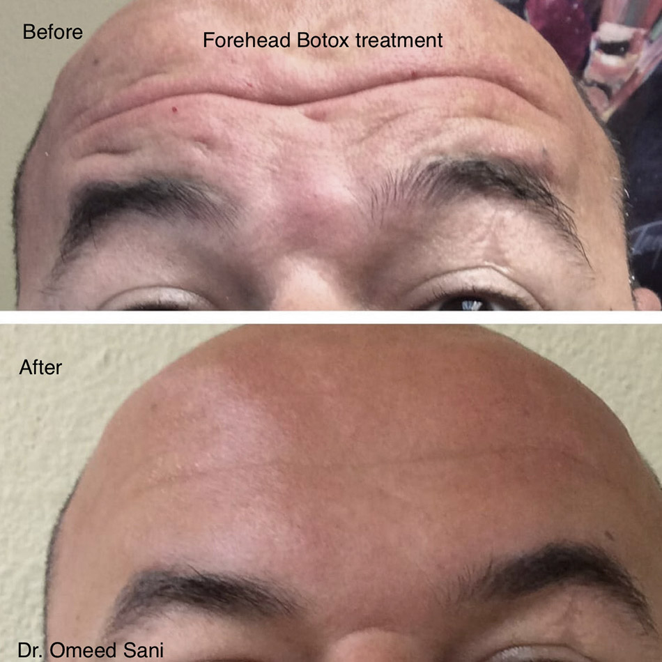 botox-forehead-wrinkles-reduction-los-gatos-san-jose