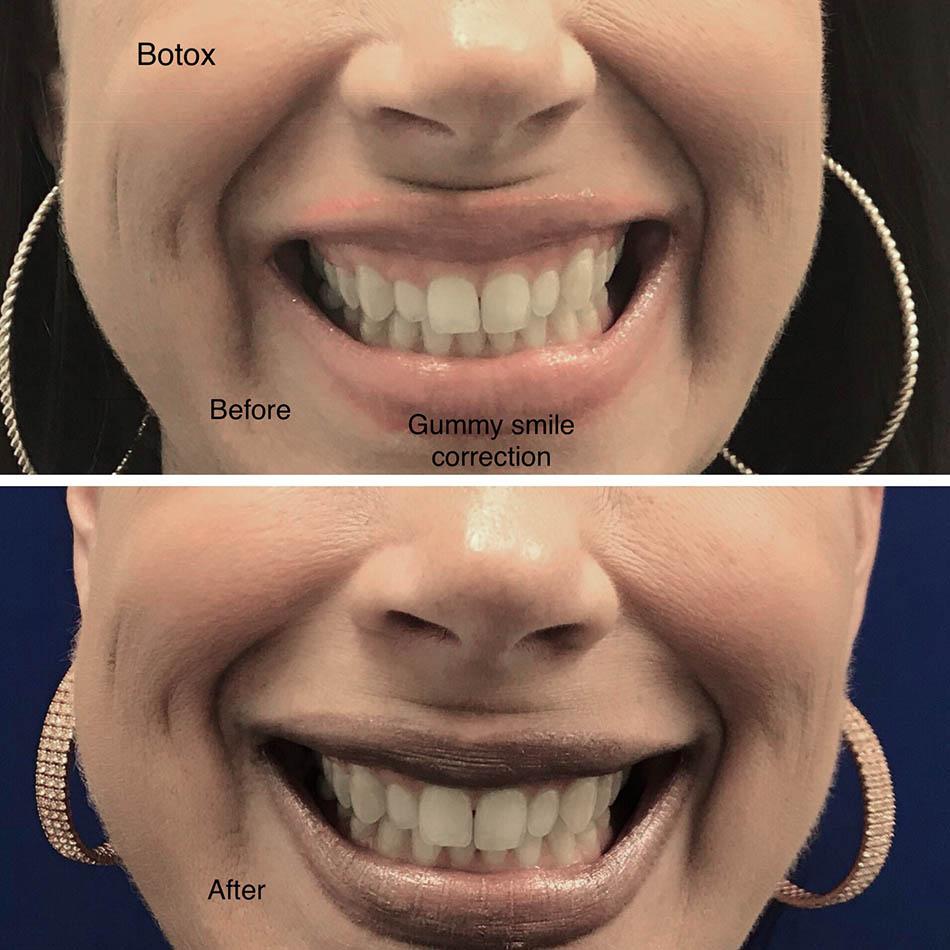 botox-gummy-smile-correction-los-gatos-san-jose