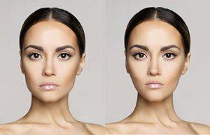 Botox for jawline contouring in Los Gatos