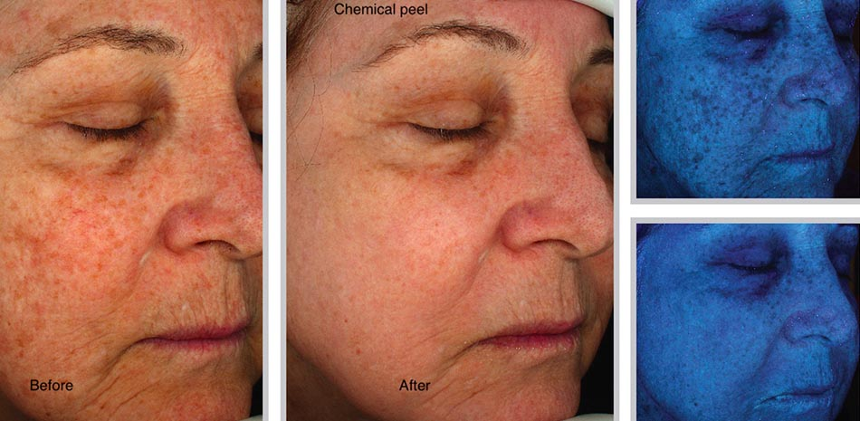 chemical-peel-sani