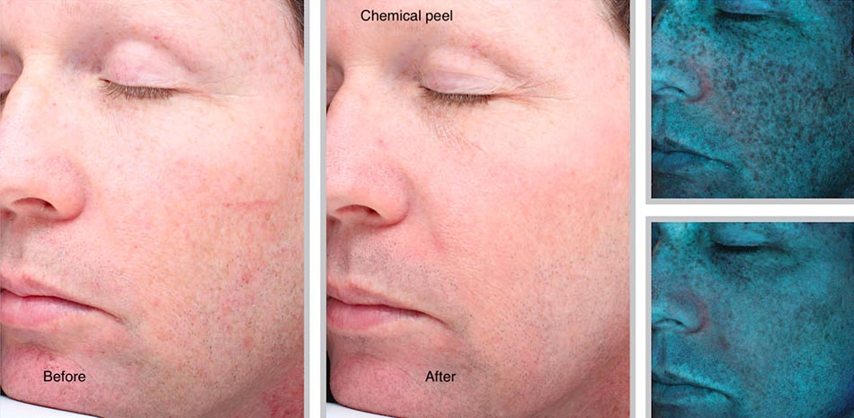 chemical-peel-sani-4
