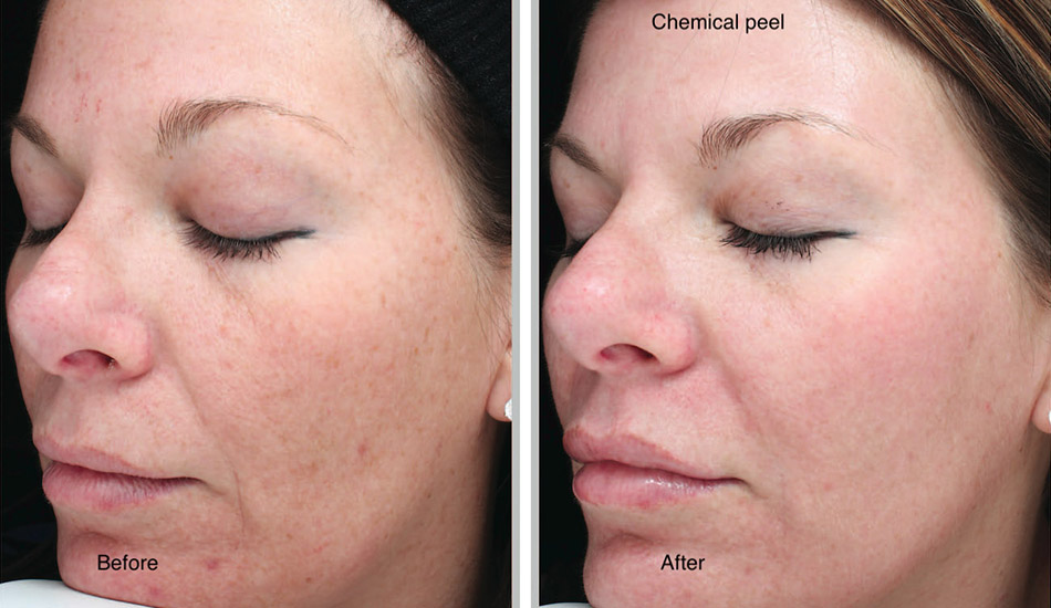 chemical-peel-sani-8