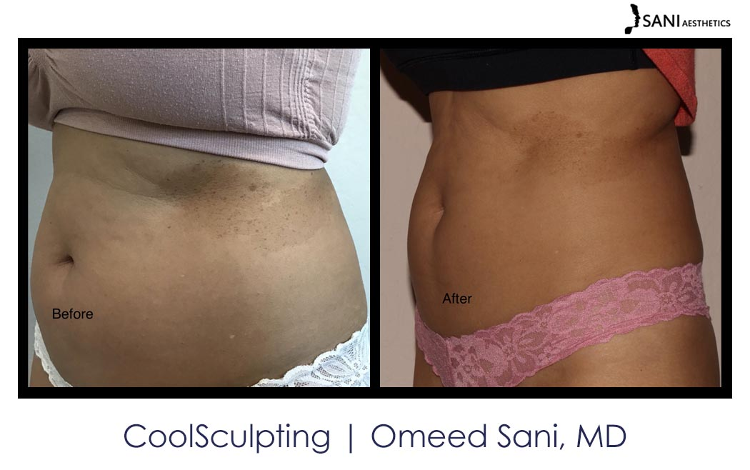 coolsculpting-los-gatos-sani-md