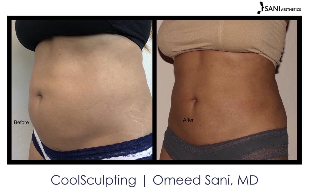 coolsculpting-los-gatos-sani-md1