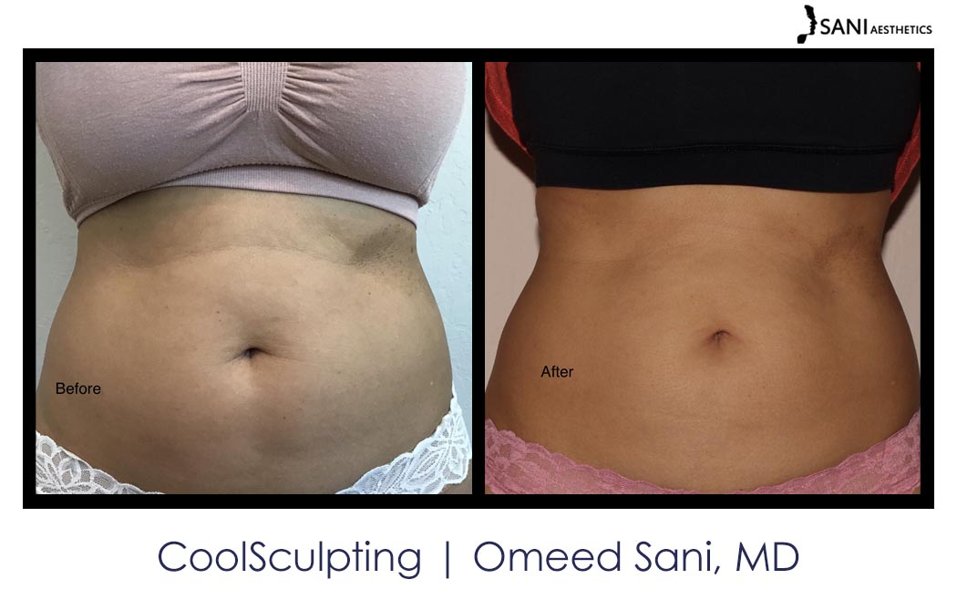 coolsculpting-los-gatos-sani-md3