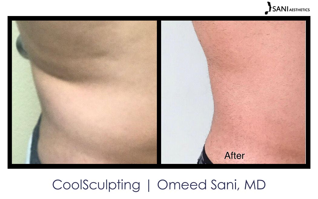 coolsculpting-los-gatos-sani-md5