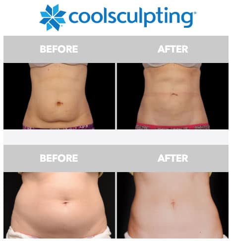 CoolSculpting Los Gatos