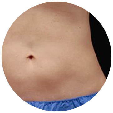 Body Contouring in Los Gatos CoolSculpting