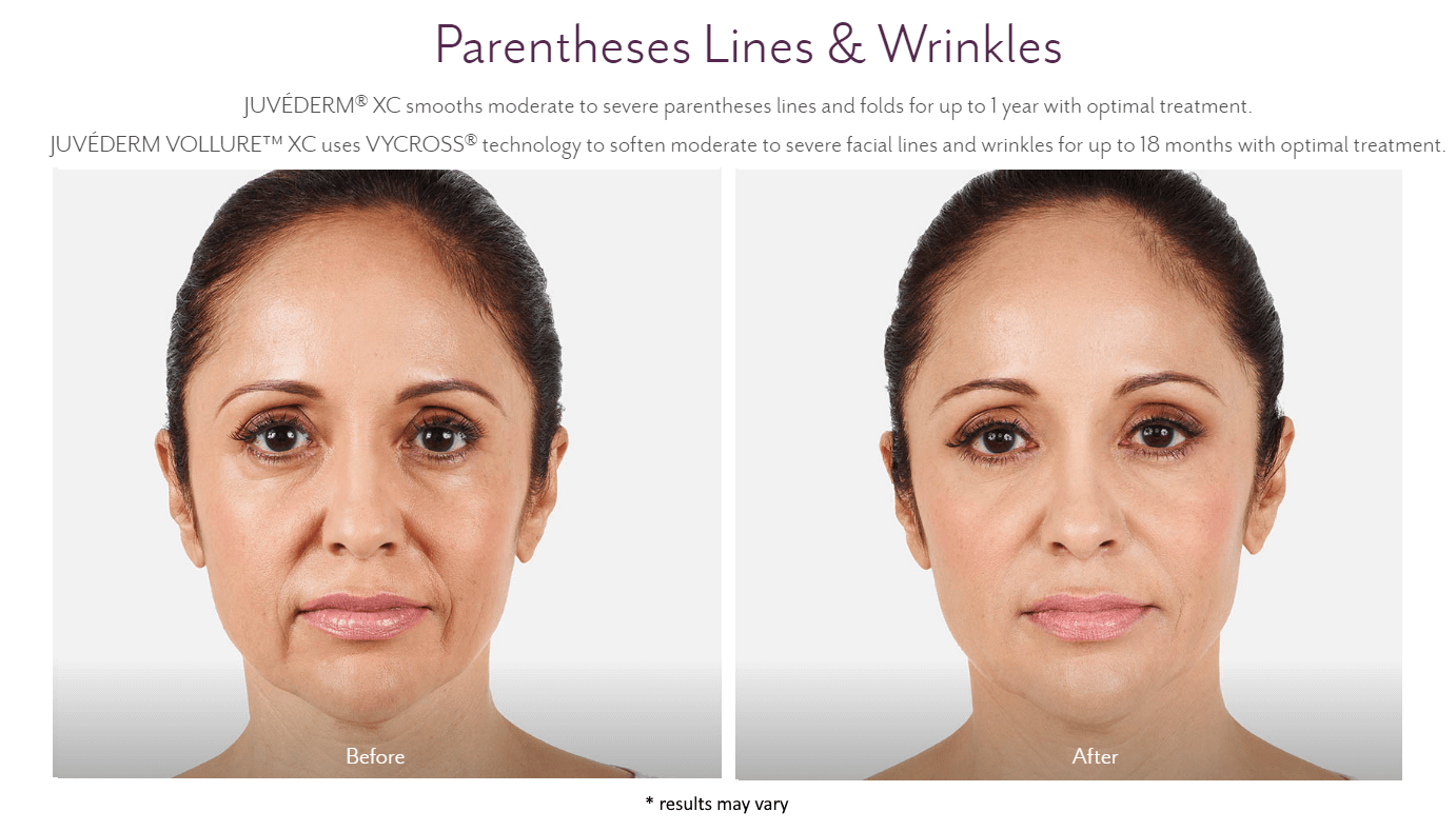 new-beauty-wellness-juvederm-before-and-after-2