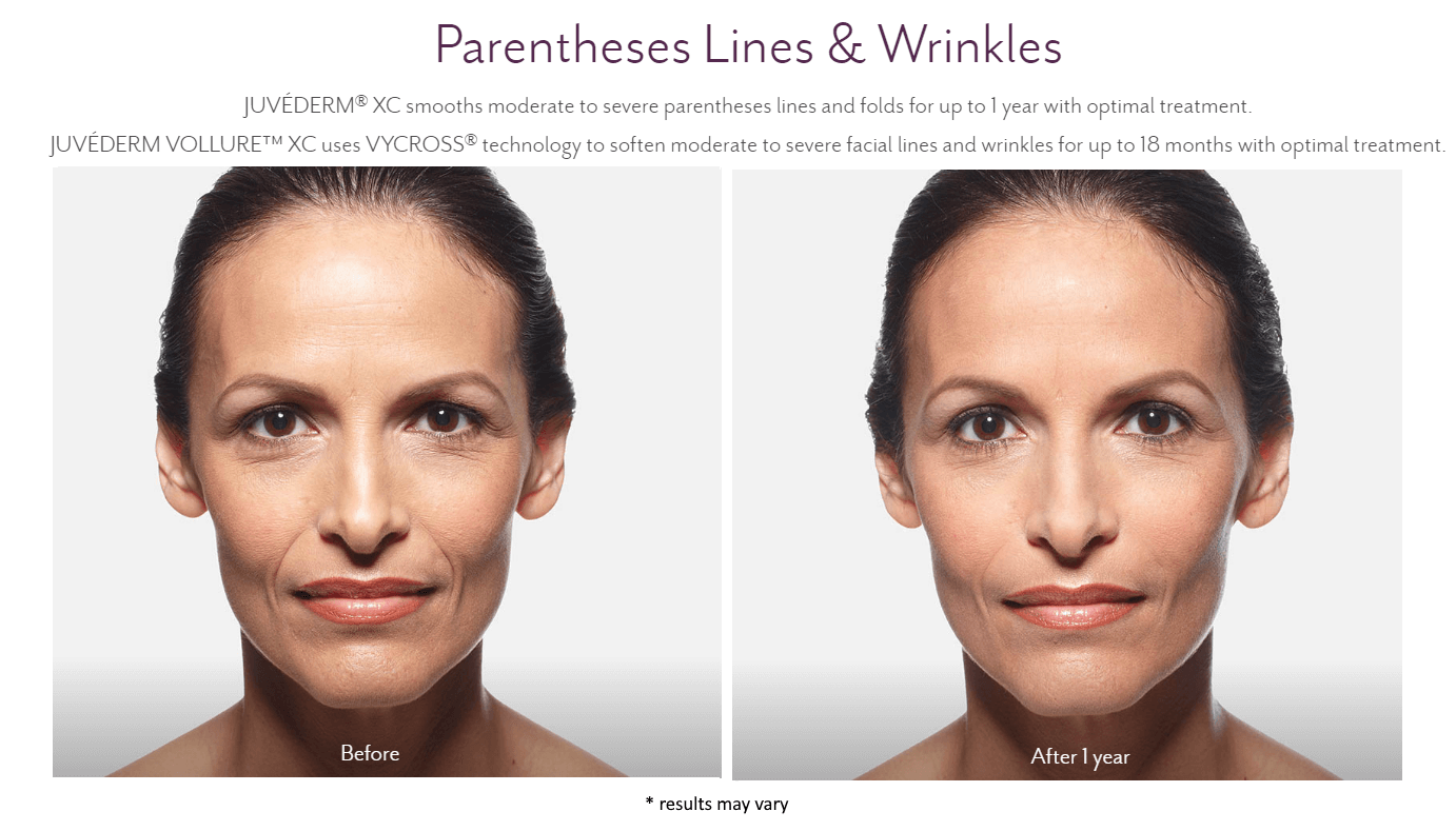 new-beauty-wellness-juvederm-before-and-after-4