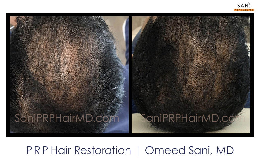 omeed-sani-hair-clinic16