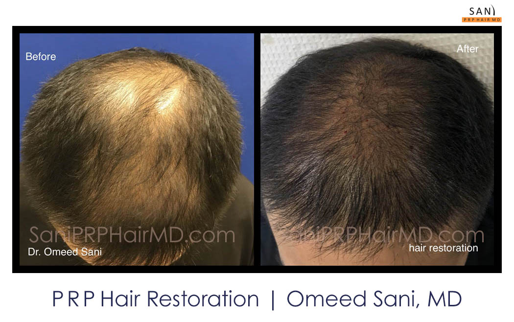 omeed-sani-hair-clinic18