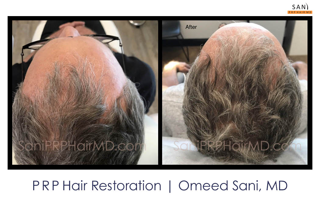 omeed-sani-hair-clinic4