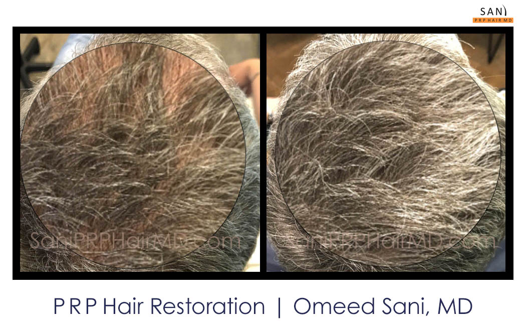 omeed-sani-hair-clinic5