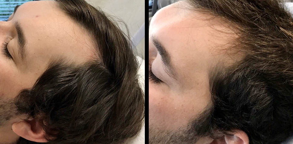 results-hair-restoration1