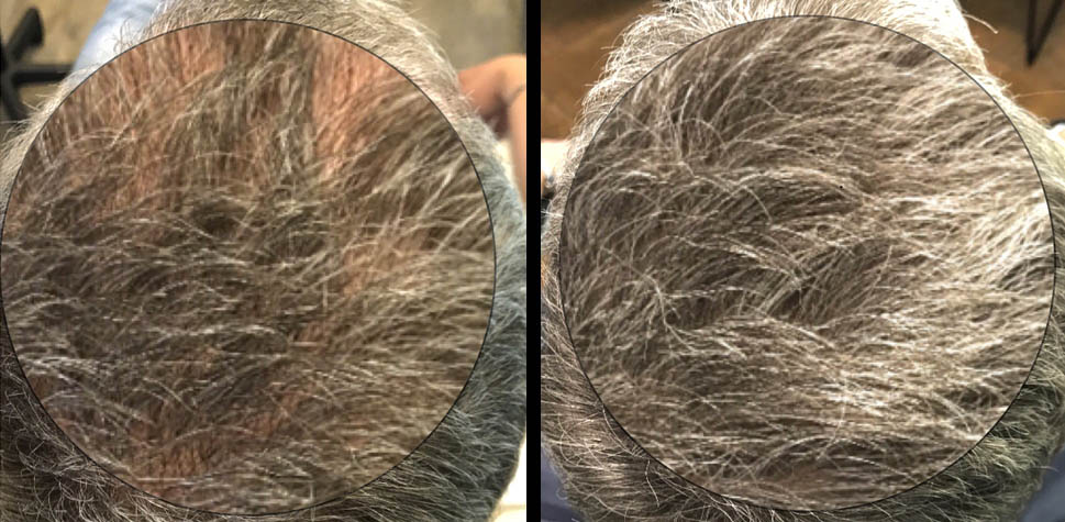 results-hair-restoration10