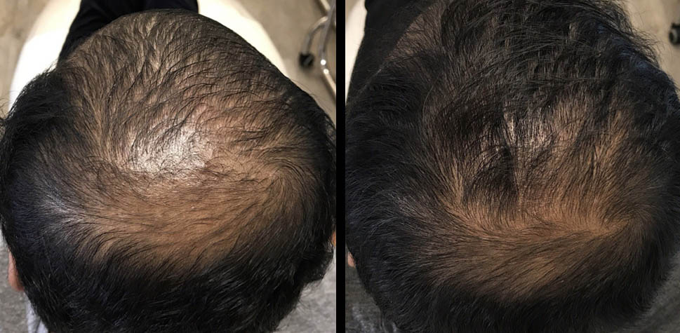 results-hair-restoration3