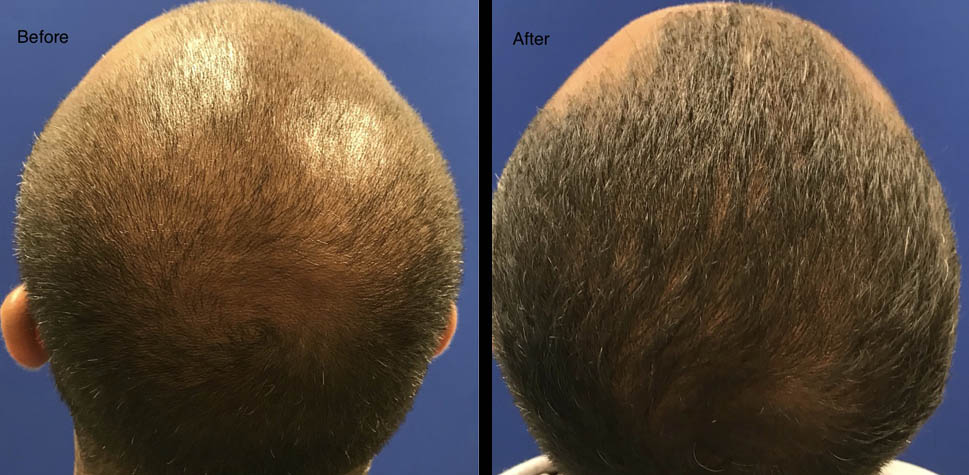 results-hair-restoration4