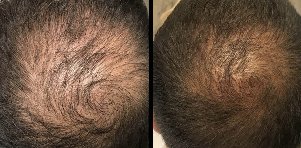 results-hair-restoration5