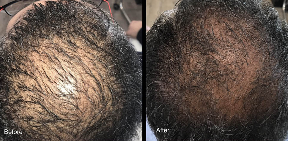 results-hair-restoration6