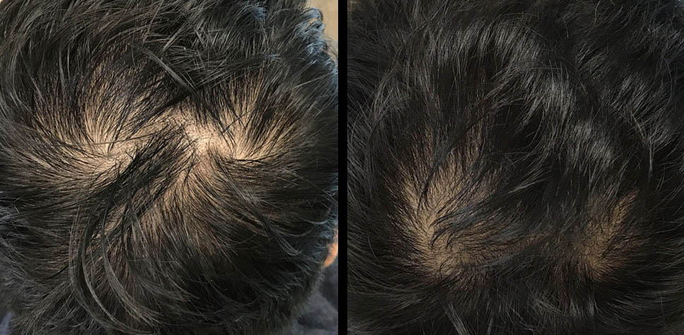 results-hair-restoration7