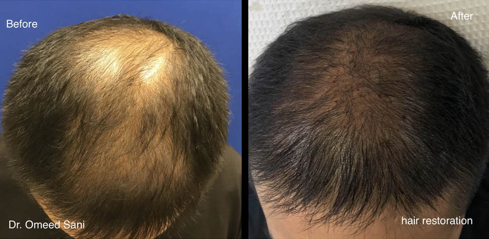 results-hair-restoration8