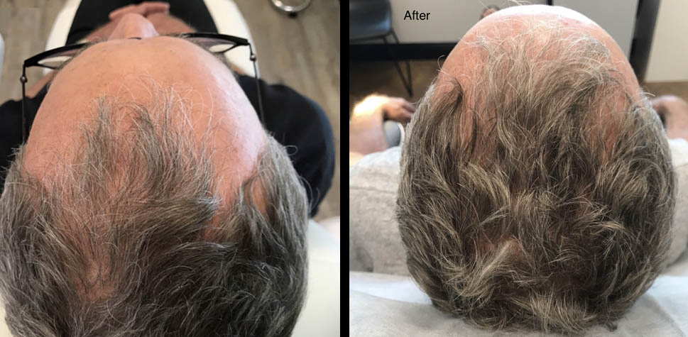 results-hair-restoration9