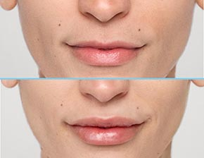 Restylane Silk Lip Filler