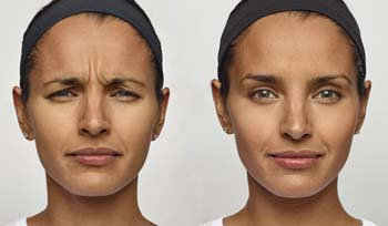 Dysport Wrinkle Reduction in Sunnyvale
